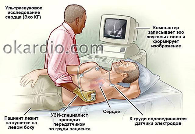 ультразвуковое исследование сердца