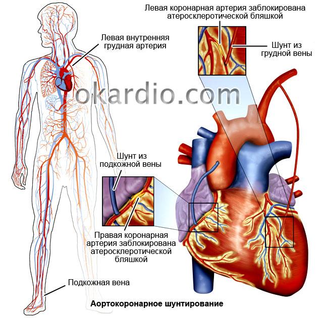 Полный обзор операции аортокоронарного шунтирования: как проходит результаты лечения