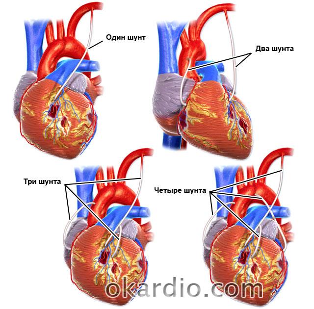 Какие продукты можно употреблять после акш операции на сердце
