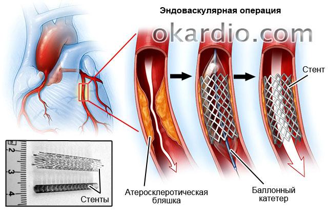 Аортокоронарное шунтирование: что это такое, послеоперационный период