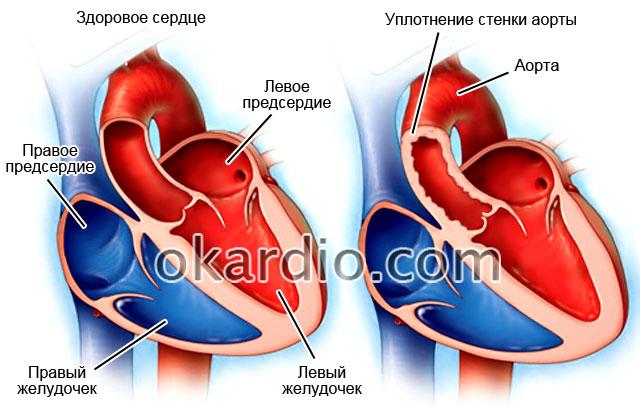 Что значит аорта уплотнена в сердце — Про сосуды