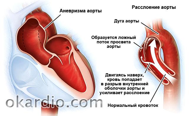 аневризма и расслоение аорты