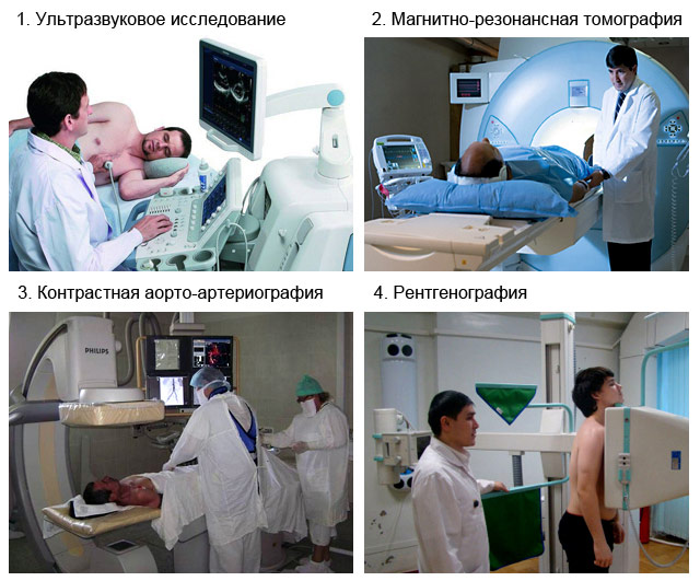 методы диагностики уплотнения аорты