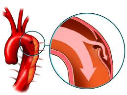 уплотнение аорты может привести к ее расслоению