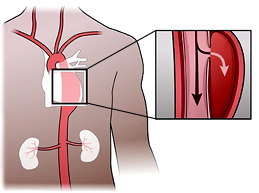 Исчерпывающий обзор разрыва аорты: причины, первая помощь, прогноз