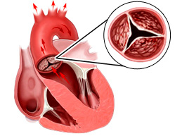 Аортальная недостаточность: суть патологии, причины, степени, лечение