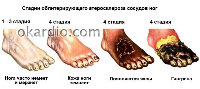 стадии облитерирующего атеросклероза сосудов ног