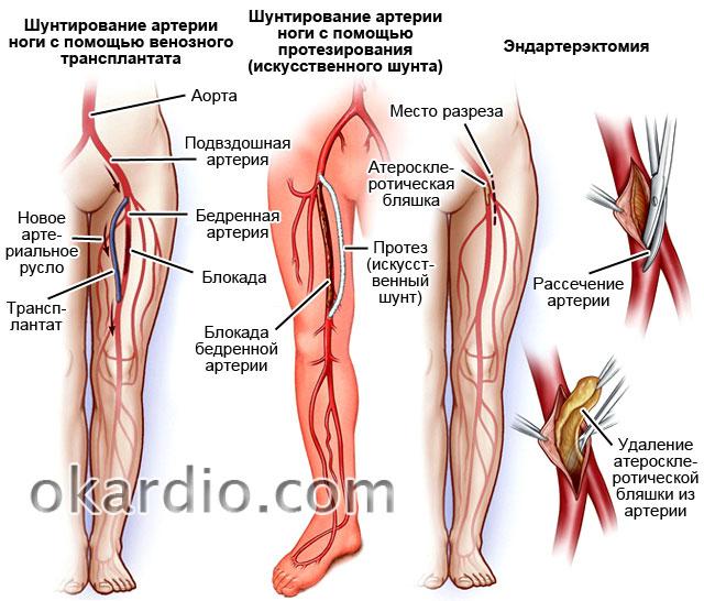 шунтирование артерии ноги и эндартерэктомия