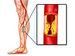 облитерирующий атеросклероз сосуда ноги