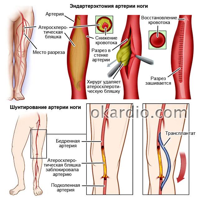 эндартерэктомия и шунтирование артерии ноги