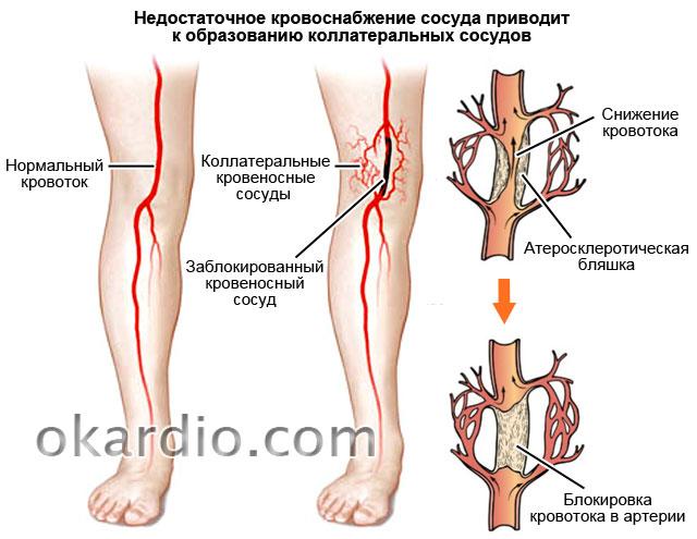 Атеросклероз нижних конечностей лечение