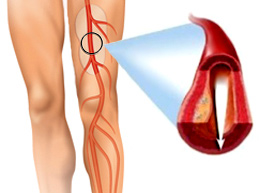 атеросклероз сосуда ноги