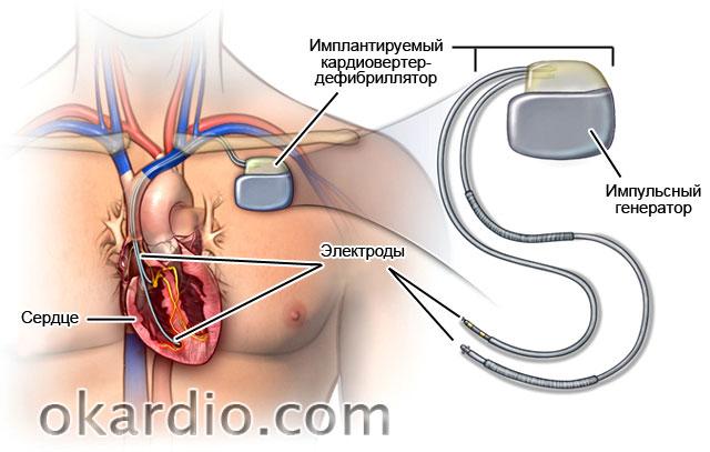 установка кардиовертера-дефибриллятора