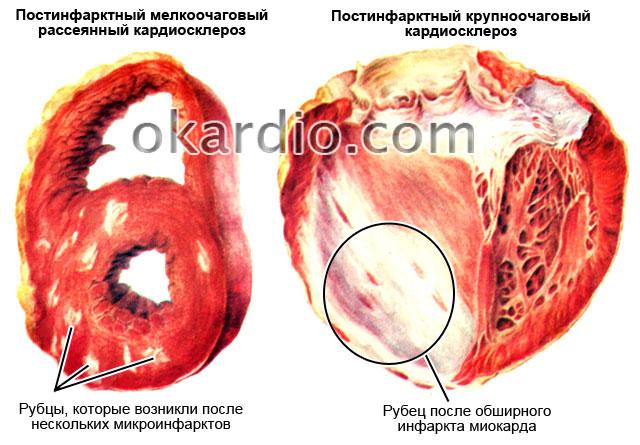 Постинфарктный кардиосклероз: что это такое, симптомы и лечение, виды