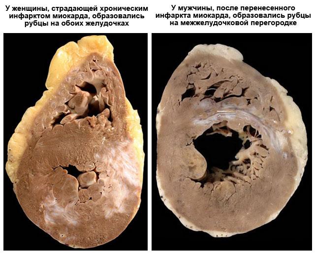 места образования рубцов постинфарктного кардиосклероза