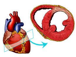 Симптомы и лечение постинфарктного кардиосклероза, смертельно опасные осложнения
