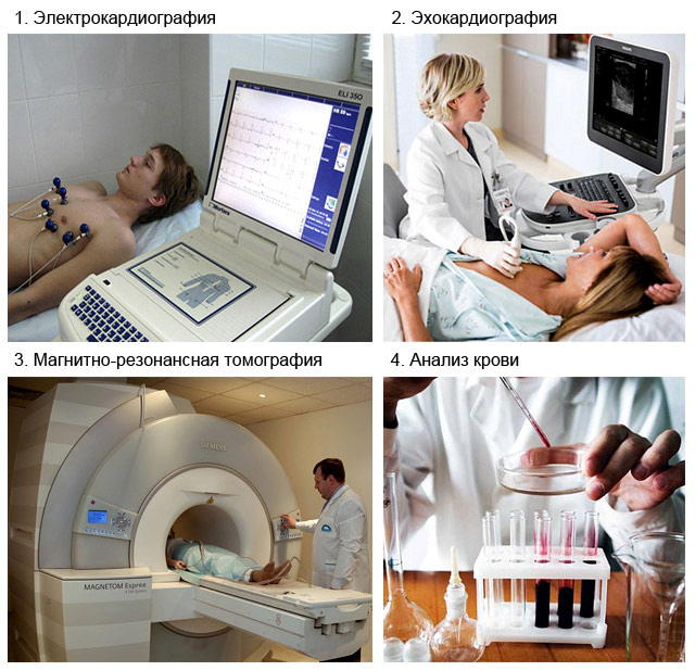 методы диагностики кардиосклероза