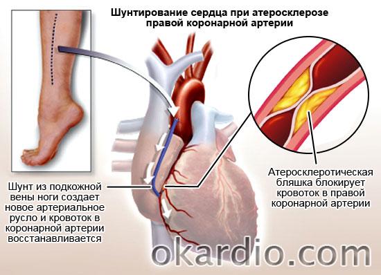 шунтирование сердца при атеросклерозе коронарной артерии