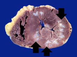 Главное о кардиосклерозе сердца: суть заболевания, виды, диагностика и лечение
