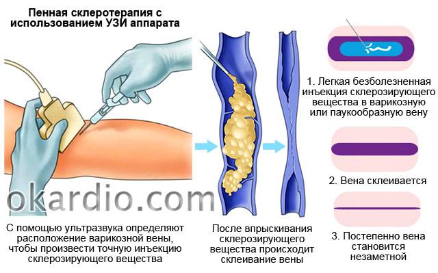 пенная склеротерапия с использованием УЗИ аппарата