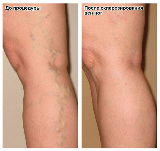 до и после склерозирования