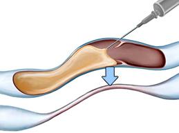 Склерозирование на ногах – безопасный аналог их удалению