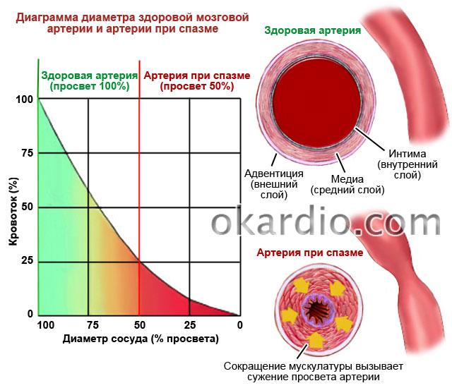 диаметр здоровой артерии и артерии при спазме