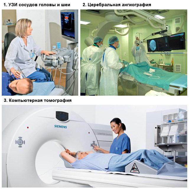 методы диагностики спазма сосудов головного мозга