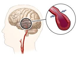 спазм сосуда головного мозга