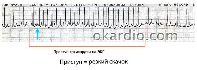 пароксизмальная тахикардия на ЭКГ