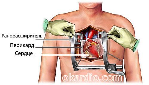 Шунтирование сердца длительность операции