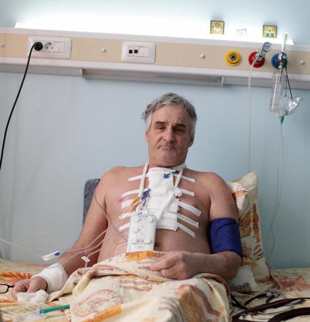 пациент в грудном бандаже после операции на сердце