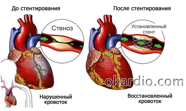 стентирование коронарных сосудов сердца