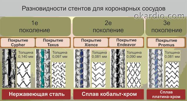 современные виды стентов для коронарных сосудов