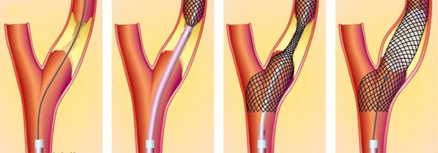ангиопластика коронарных артерий