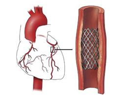 стент в коронарной артерии
