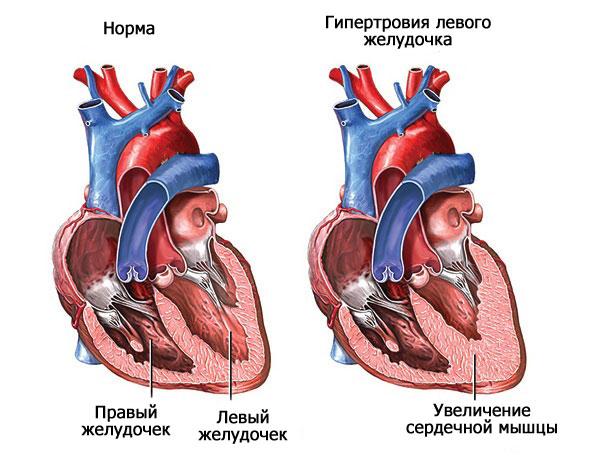 Как болит желудочек сердца thumbnail