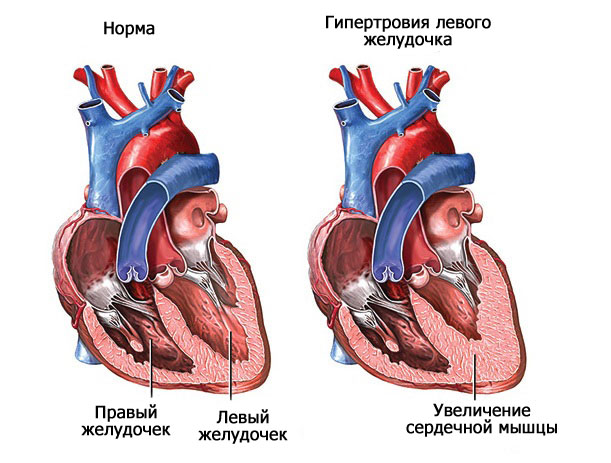 Гипотрофия левого желудочка сердца и все о болезни