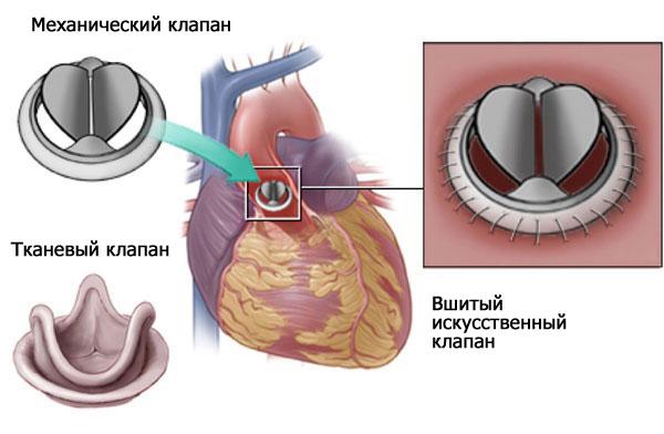 протезирование аортального клапана