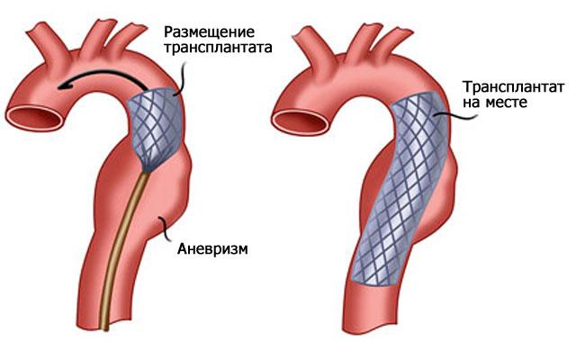 стентирование аорты