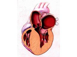 Гипертрофия левого желудочка сердца: что это, симптомы, лечение
