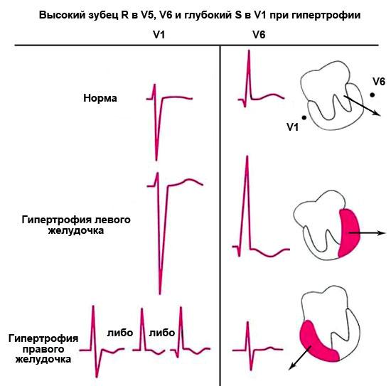 высокий зубец R в V5, V6 и глубокий S в V1 при гипертрофии