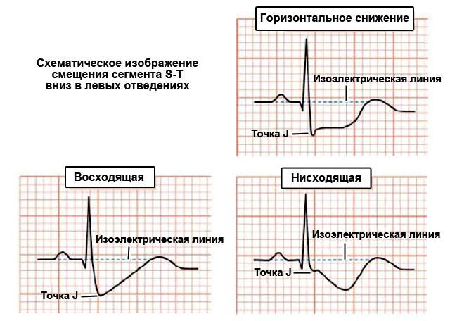 схематическое изображение смещения сегмента S-T