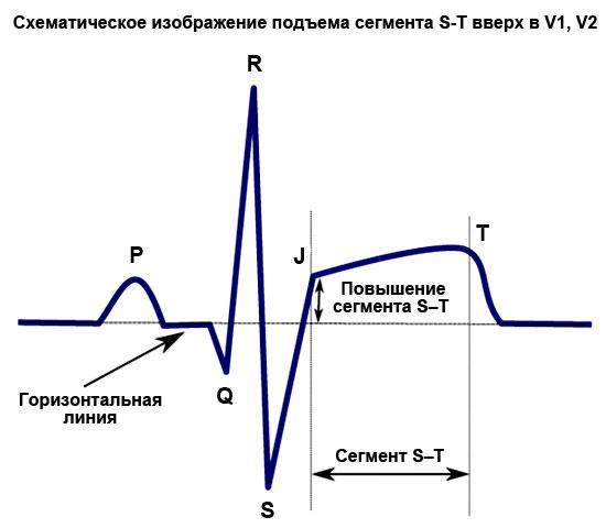 схематическое изображение подъема сегмента S-T вверх в V1, V2