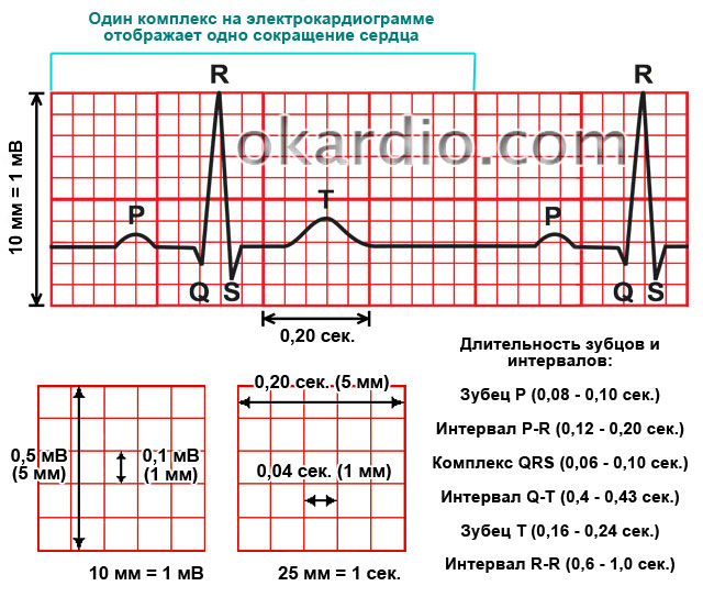 Гипертрофия левого желудочка сердца на ЭКГ: разбор признаков