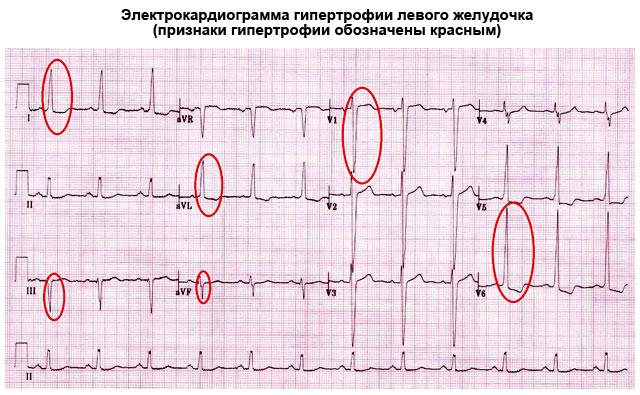 электрокардиограмма гипертрофии левого желудочка