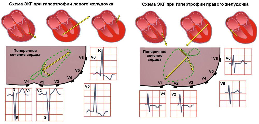 Плохо работает левый желудочек сердца что делать