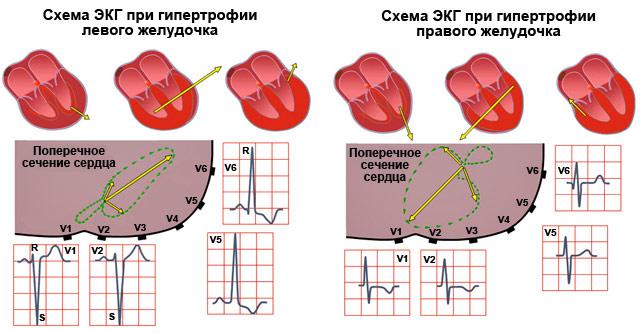 схемы ЭКГ при гипертрофии левого и правого желудочка