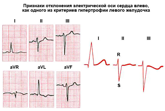 признаки отклонения электрической оси сердца влево, как одного из критериев гипертрофии левого желудочка