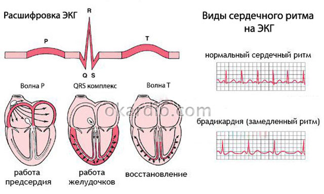 ЭКГ нормального и замедленного ритма сердца